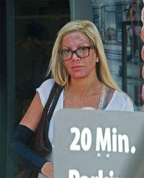 Tori Spelling lộ gương mặt đỏ gay gắt sau khi đi spa