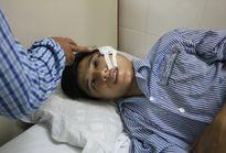 Tuần tra đêm, một cảnh sát bị ném đá trúng mặt