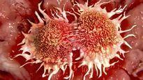 Phát hiện cách điều trị ung thư mới triển vọng nhất hiện nay