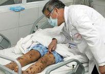 Ghi nhận 3 trường hợp tử vong do viêm não mô cầu