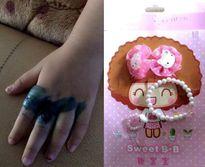 Bé gái bị phồng rộp bàn tay vì đeo nhẫn đồ chơi Trung Quốc