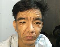 Những bệnh 'lạ' lần đầu xuất hiện ở Việt Nam