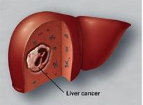 Sự thật loại thảo dược chữa được ung thư gan, kể cả thời kỳ cuối