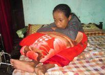 Sự thật bất ngờ về cô gái hơn 10 năm ngủ ngồi