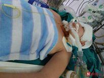 Bi kịch thiếu nữ cháy đen, mất chân vì lao vào cứu cha bị điện giật