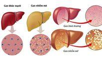 Chuyên gia mách cách tránh bị gan nhiễm mỡ