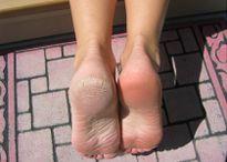 Cách chữa nứt gót chân hiệu quả hơn cả dùng thuốc