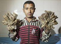 Chuyện lạ khó tin: Người đàn ông chân tay biến thành cây