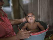 Trung Quốc xác nhận ca nhiễm Zika đầu tiên