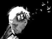 Bệnh Alzheimer có thể lây?