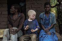 Cuộc sống cùng cực của người bạch tạng bị săn bắt ở châu Phi