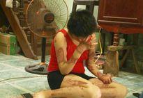 Chồng tưới xăng đốt vợ: Nước mắt rơi vì lựa chọn sai lầm