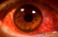 Giun bò ngọ nguậy trong mắt và nguyên nhân khiến bạn 'ngã ngửa'