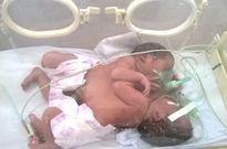 Hai trẻ song sinh dính liền ở Hà Giang: 'Khả năng phẫu thuật tách rời rất khó'