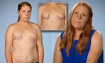 """Quý bà ngực như """"càng cua"""" vì phẫu thuật nâng ngực hỏng"""