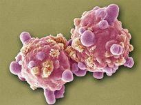 Chuyên gia WHO: Làm xong 12 điều này, khỏi lo ung thư!