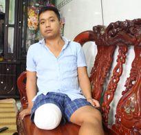 Bệnh nhân bị cưa chân ở Sài Gòn do bác sĩ chủ quan