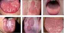 4 phương pháp vàng chữa bệnh rưa lưỡi ở trẻ sơ sinh và trẻ nhỏ