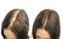 Khắc phục rụng tóc mùa thu bằng khế chua hiệu quả