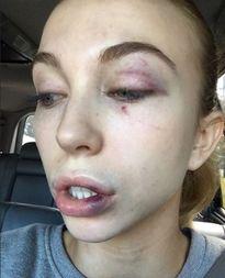 Thí sinh Hoa hậu bị đánh hội đồng dã man vì lý do không tưởng