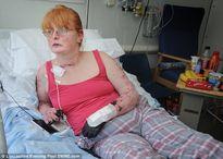 Bà mẹ phải cắt cụt tay chân vì nhiễm trùng máu