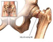 Cách phòng ngừa gãy xương vùng khớp háng ở người cao tuổi