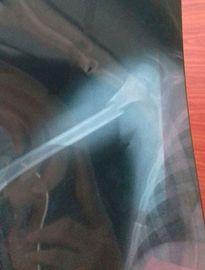 Em bé bị gãy tay nhưng 4 bác sĩ chẩn đoán nhầm bong gân