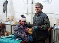Những bức hình ám ảnh về các nạn nhân trẻ em tại Syria