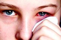 Cân nhắc chế độ ăn uống là việc rất cần thiết cho người điều trị đau mắt đỏ