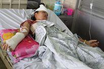 Bốn nạn nhân vụ sập lò gạch phải điều trị tích cực tại BV Chợ Rẫy