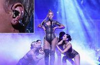 Beyoncé diễn sung bất chấp tai nạn rách tai chảy máu