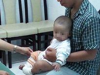 Sơ cứu sai cách, trẻ phỏng nhẹ thành nặng