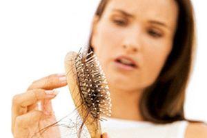 5 phương pháp ngăn rụng tóc để có mái tóc bóng khỏe ngày Tết