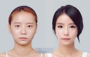 Nhan sắc thật của hot girl xứ Hàn trước khi phẫu thuật thẩm mỹ