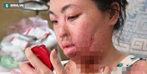 'Người mẹ ma' ở TP HCM đau đớn kể chuyện bị axit tàn phá cơ thể