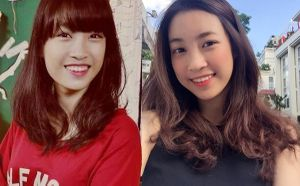 Hoa hậu Đỗ Mỹ Linh bị tố từng sửa răng