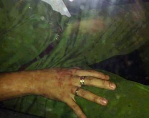Người phụ nữ bị công an túm tóc, kéo lê gây thương tích lên tiếng