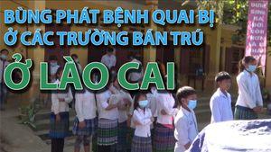 Bùng phát bệnh quai bị ở các trường bán trú ở Lào Cai