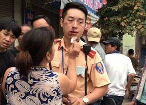 Khởi tố, bắt giam thanh niên 'đấm' gãy răng CSGT Hà Nội