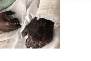 Đôi bàn tay thâm đen như 'xác ướp' chỉ vì một vết xước nhỏ trong khi bắt cua