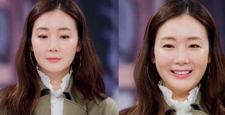 Choi Ji Woo xuong sac tham hai, mat cung do nhu tuong sap - Anh 1
