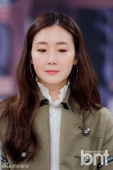 Choi Ji Woo xuong sac tham hai, mat cung do nhu tuong sap - Anh 6