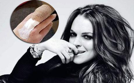 Lindsay Lohan dau don vi tai nan kinh hoang - Anh 1