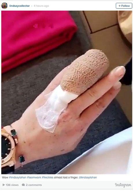Lindsay Lohan bi tai nan cat lia nua ngon tay - Anh 2