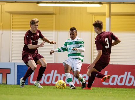 Celtic gay soc voi than dong 13 tuoi Dembele - Anh 6
