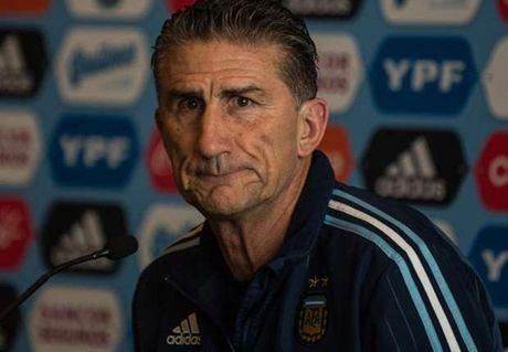 HLV Argentina san sang cho cuoc song 'khong Messi' - Anh 1