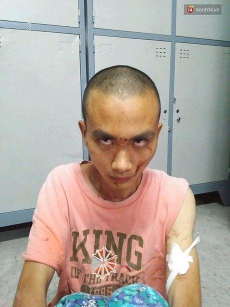 Vu truy sat o chua Buu Quang: Nghi van hung thu dung chat kich thich - Anh 1