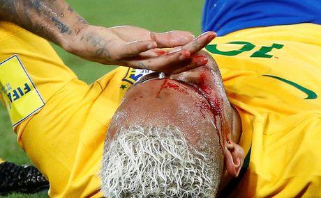 Brazil thang dam nhung Neymar do mau - Anh 4