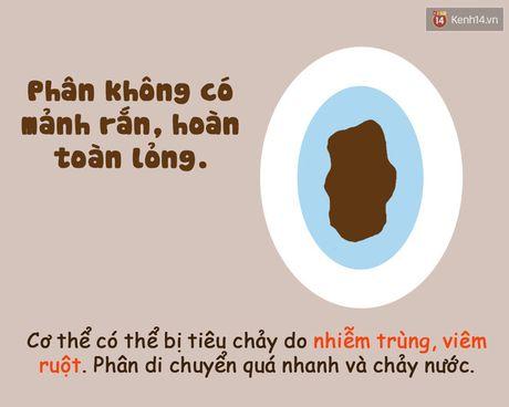 Xem hinh dang chat thai 'te nhi' biet ngay co the ban dang nhu the nao! - Anh 4