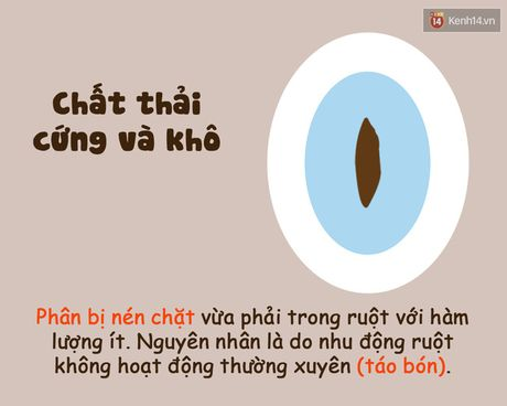 Xem hinh dang chat thai 'te nhi' biet ngay co the ban dang nhu the nao! - Anh 7